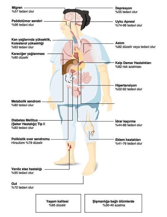Obezitenin tedavi edilmesiyle neden olduğu hastalıkların ortadan kalkma oranı.